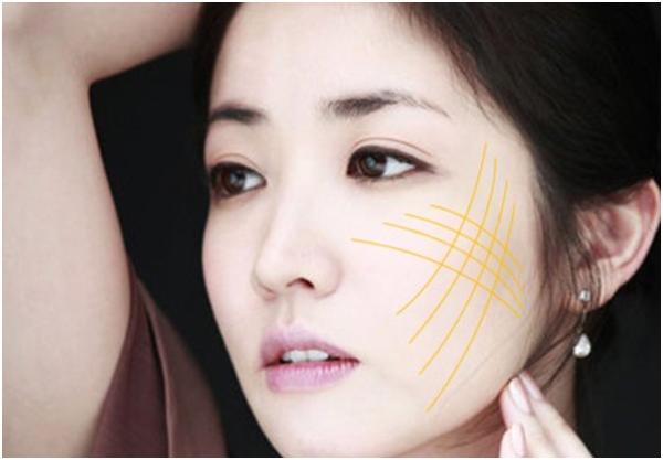 Tất tần tật điều cần biết về phương pháp căng da mặt bằng chỉ Ultra V Lift